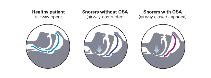 the-airway-when-you-snore-apnoea